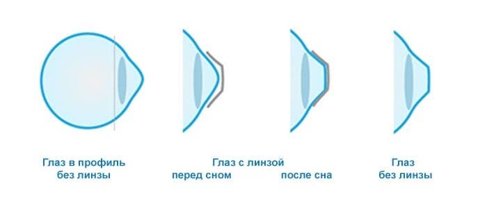 Изменения глаза