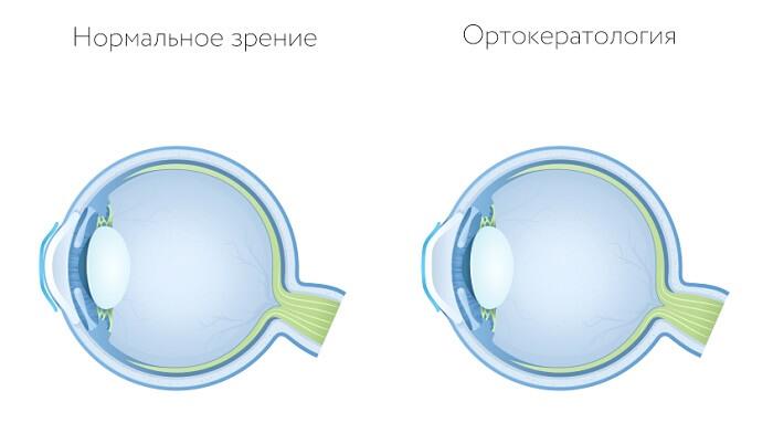 Ортокератология у человека