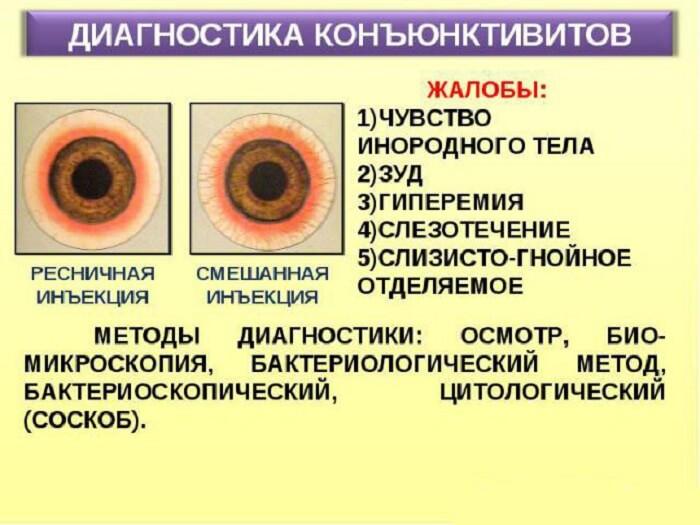 Диагностика конъюнктивитов