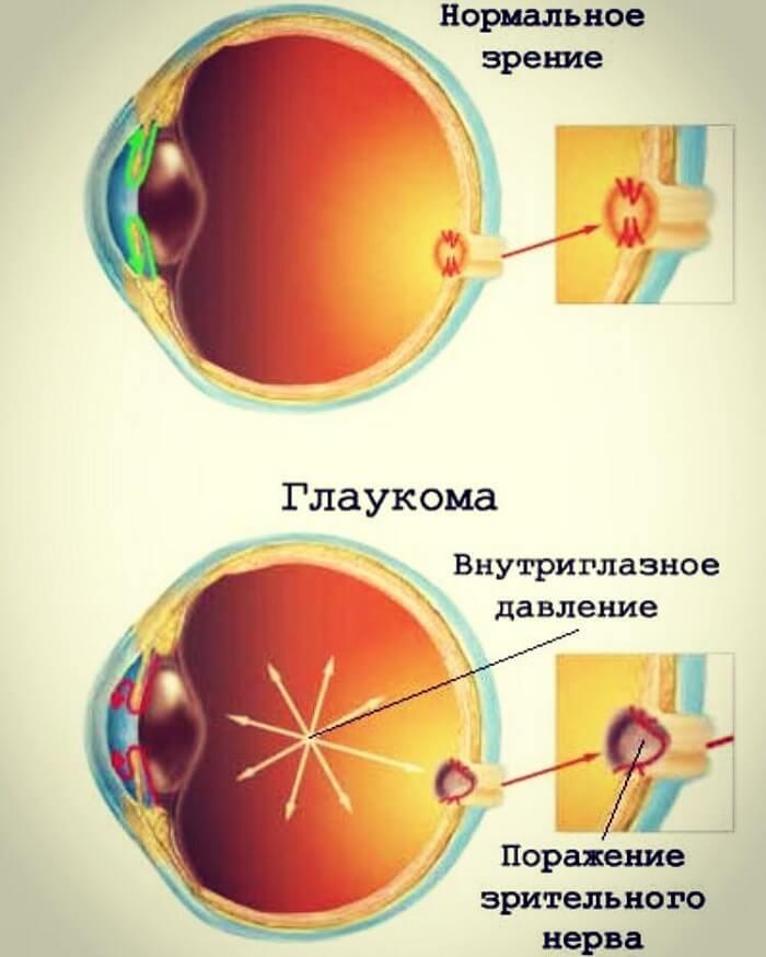 Глаукома у человека