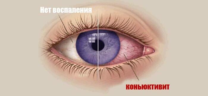 Глаз с воспалением конъюнктивы