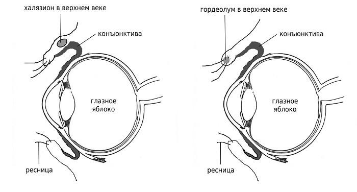Халязион на глазу