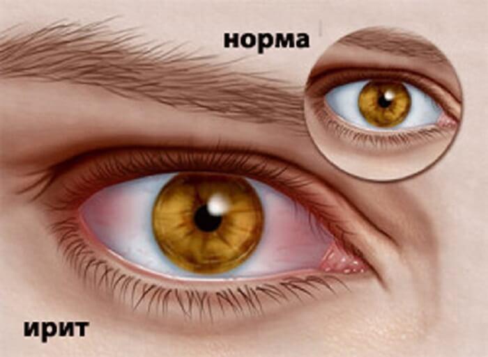софрадекс инструкция по применению в глаза