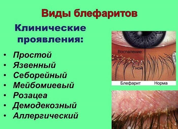 Клинические проявления блефаритов
