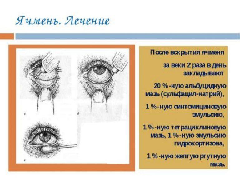 Ячмень на глазу лечение в домашних условиях  486