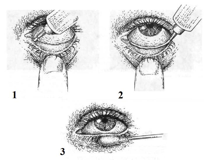 Как наносить мазь для глаз