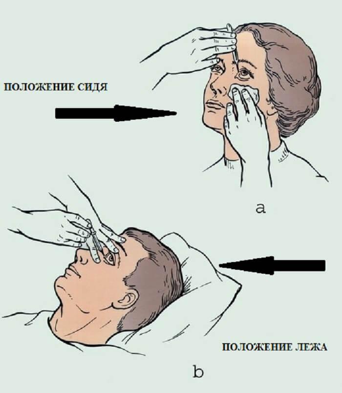 Методика закапывания глаз