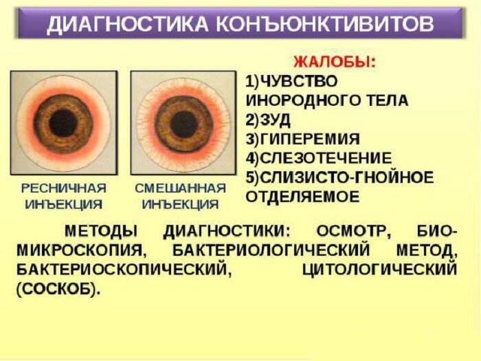 Методы диагностики конъюнктивитов