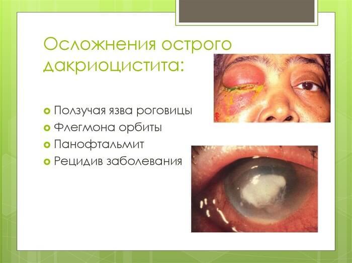 Осложнения дакриоцистита