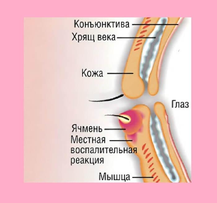 Расположение данного недуга