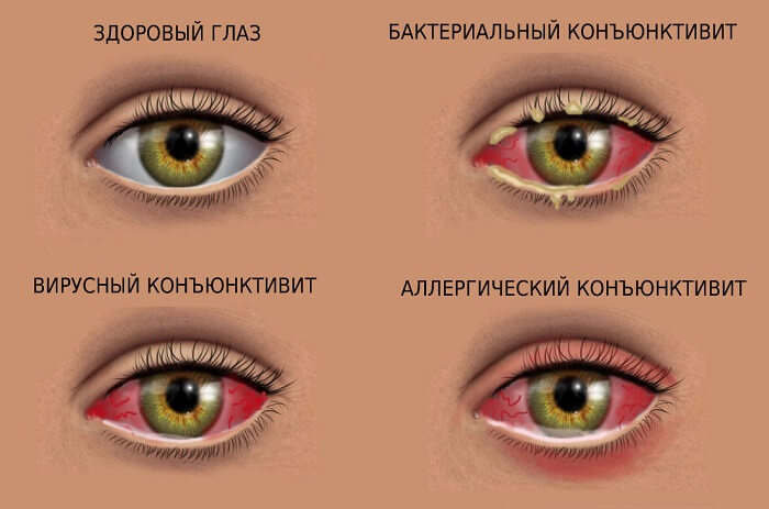 Разновидности данного недуга