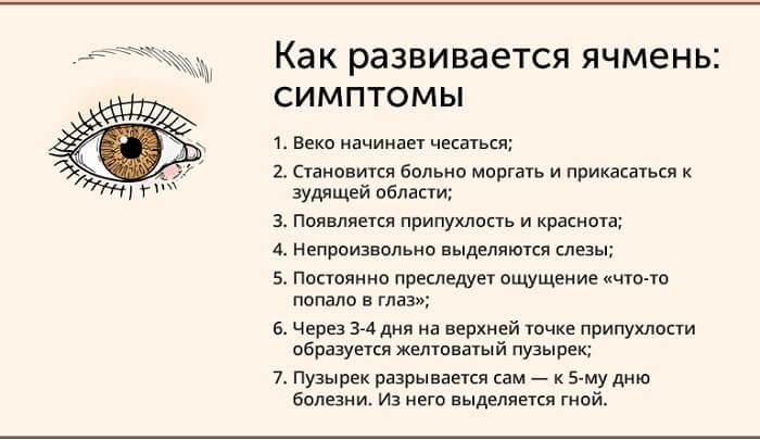 Симптомы развития ячменя