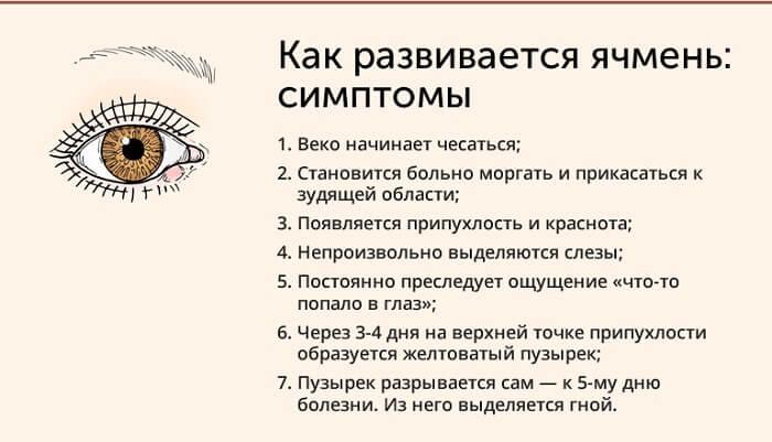 Симптомы ячменя человека