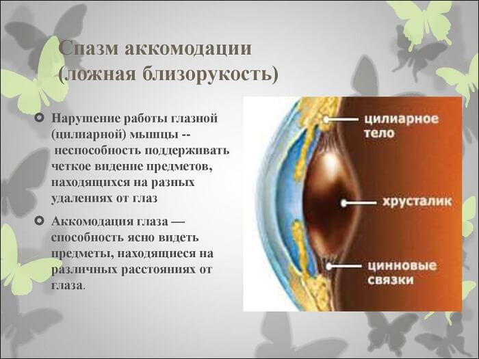 Спазм аккомодации глаза