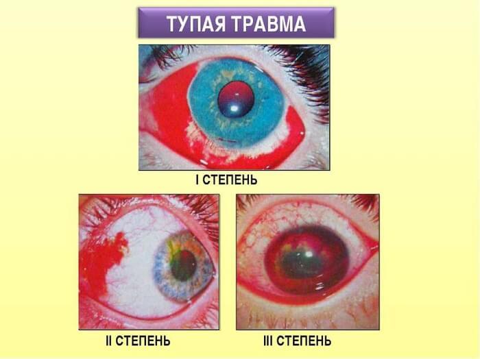 Тупая травма глаза
