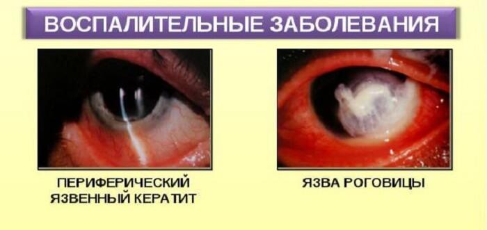 Воспалительные заболевания роговицы