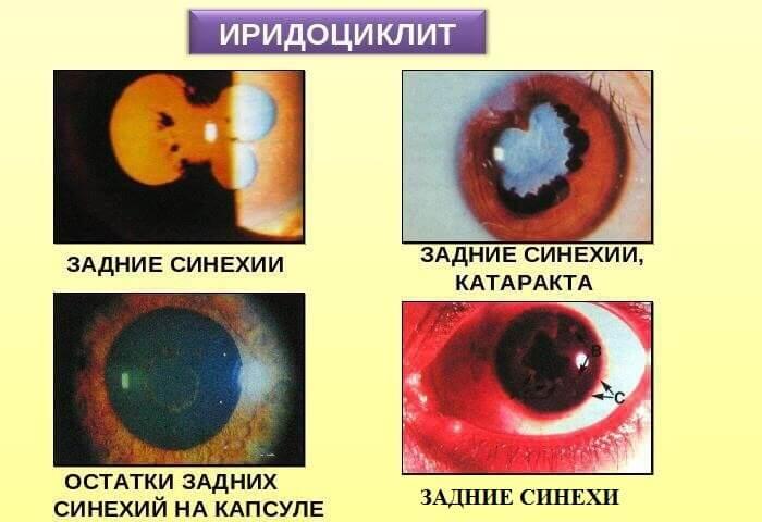 Задние синехии
