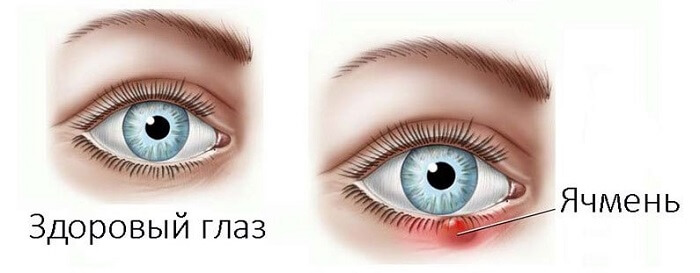 Здоровый глаз и ячмень
