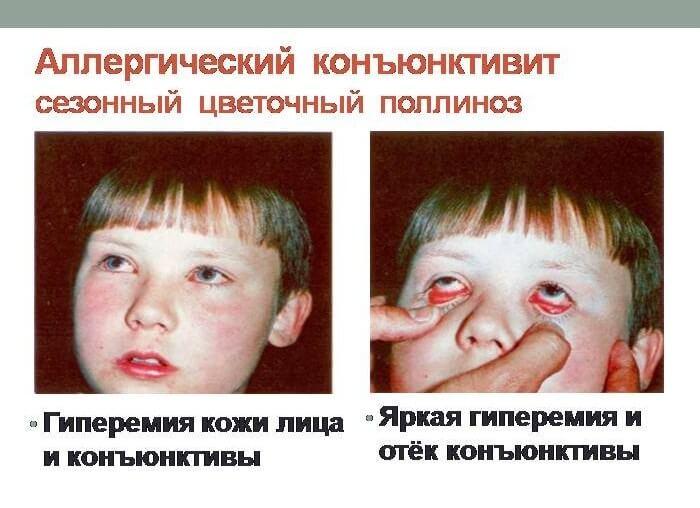 Алергический конъюнктивит