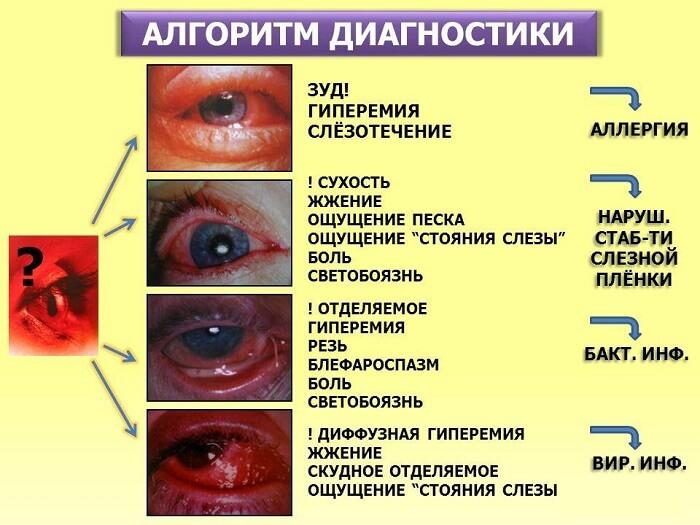 Капли в глаза от аллергии названия
