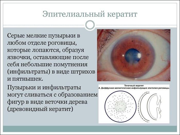 Эпителиальный кератит глаза
