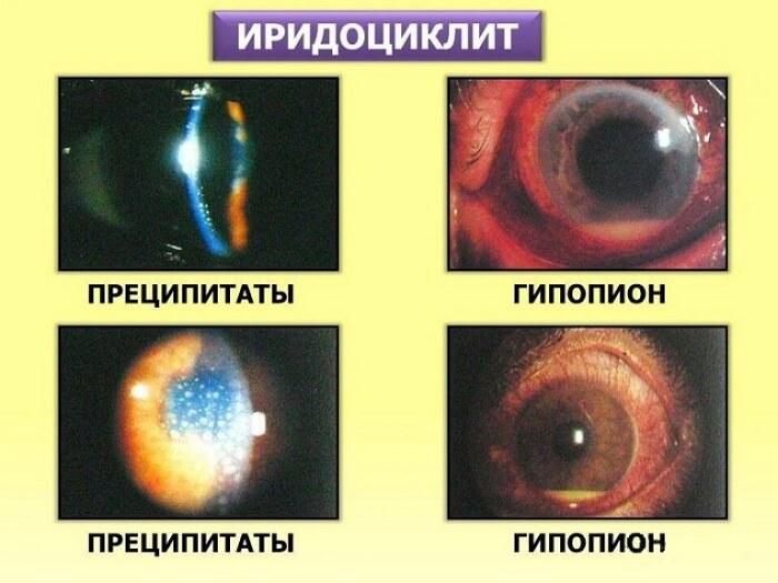 Иридоциклит глаза человека