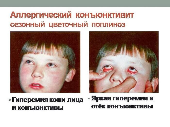 Проявления аллергического конъюнктивита