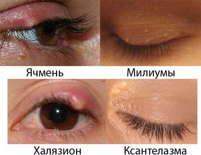 Различия другими заболеваниями