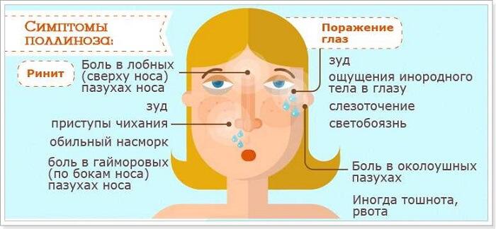 Симптомы поллиноза у человека