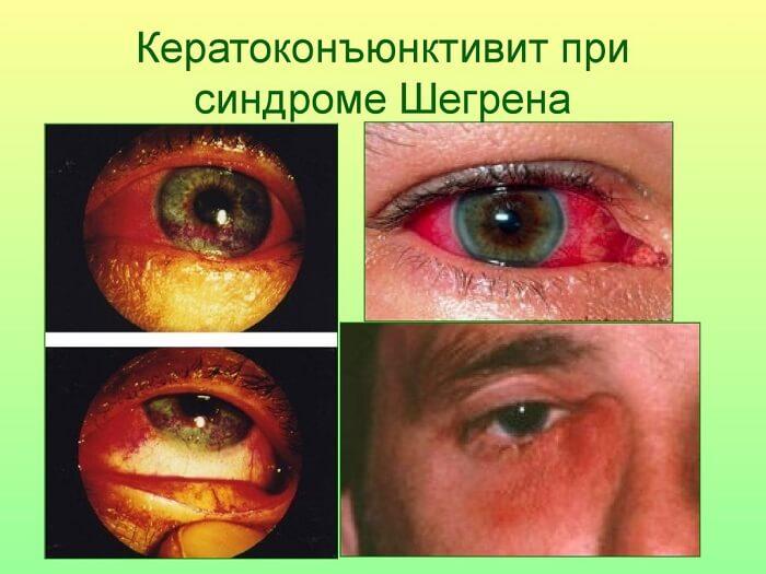 Синдром Шегрена у человека