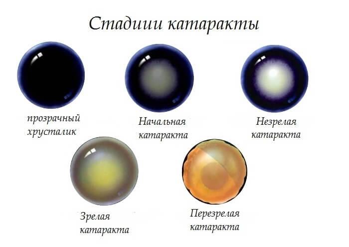 Инструкция по применению глазных каплей Офтан Катахром