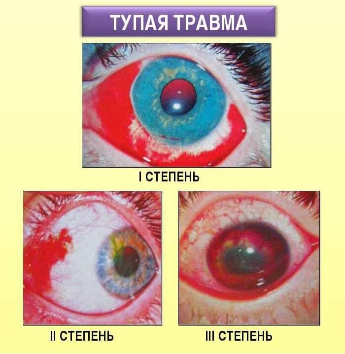 Стадии травмы глаза