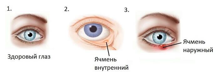 Типология ячменя у человека