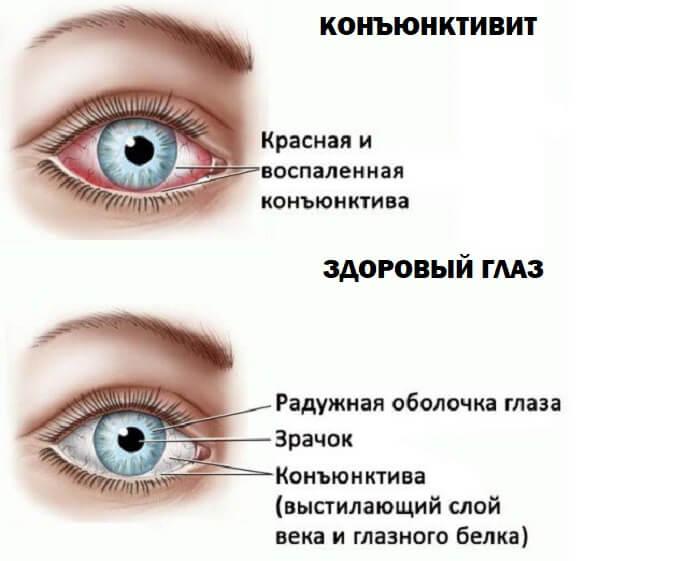 Здоровый глаз и конъюнктивит
