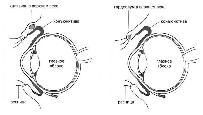 Халязион в глазу у человека