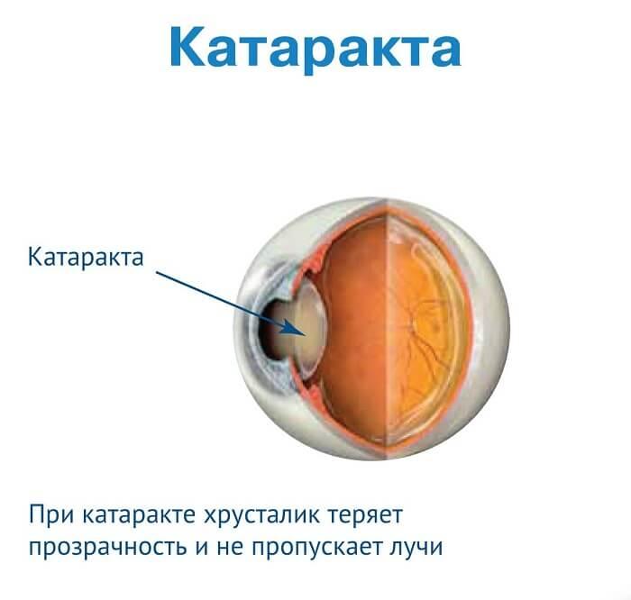 Характеристика катаракты