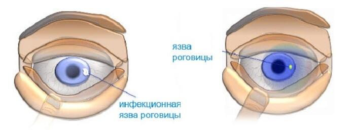 Инфекции роговицы глаза