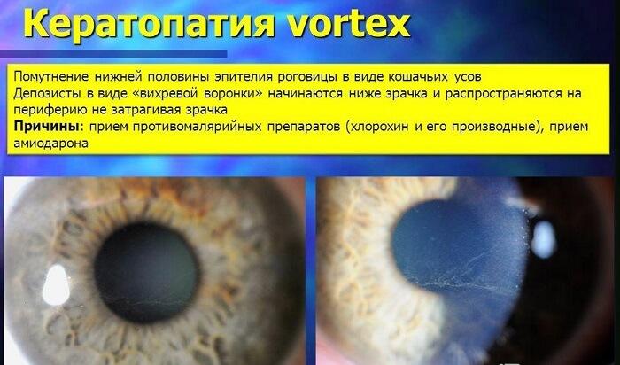 Кератопатия глаза человека