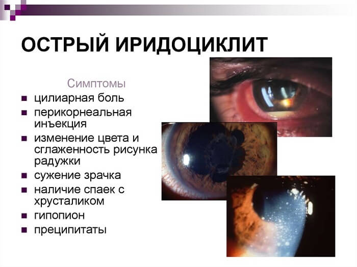 Основные симптомы иридоциклита