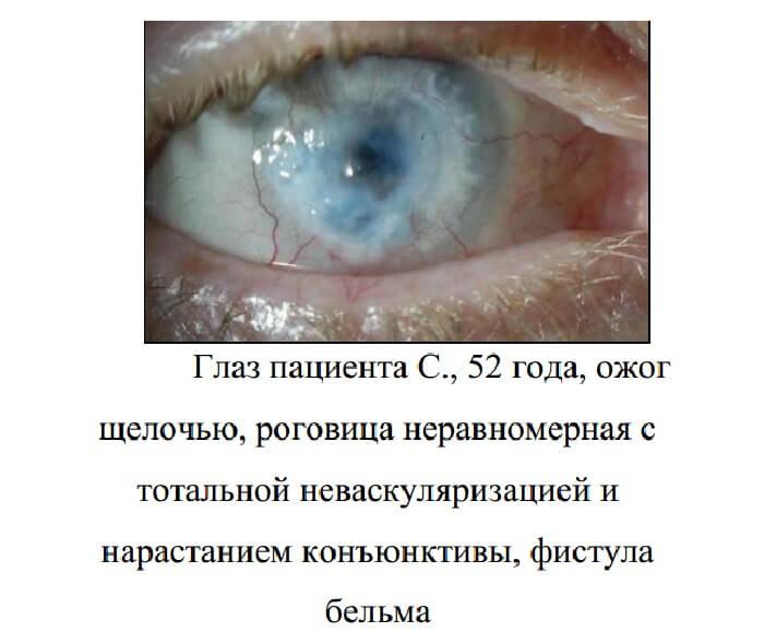 Ожоги роговицы глаза