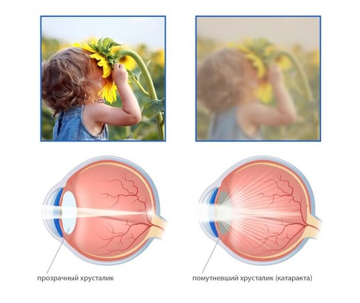 Помутневшее зрение от катаракты