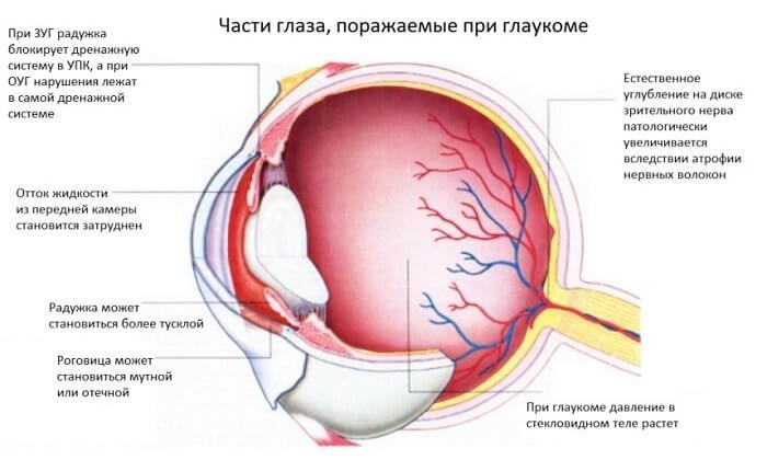 Поражение при глаукоме у человека