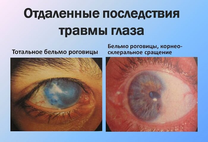 Последствия травмы глаза