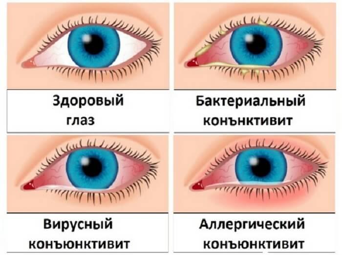 Разновидности конъюнкитивита