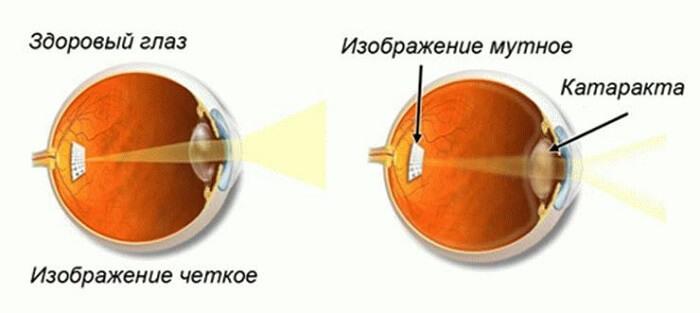 Сравнение глаз при катаракте