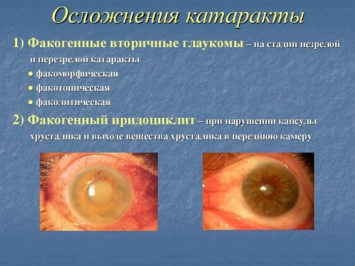 Стадии осложнения катаракты