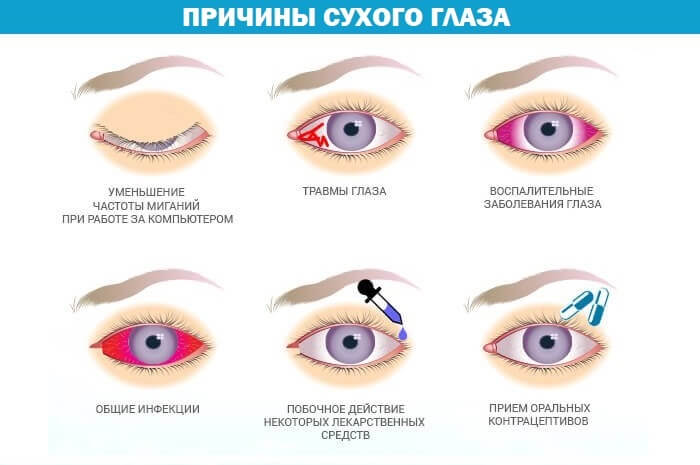 Сухой глаз у человека