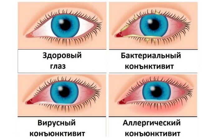 Типы конъюнктивита глаза