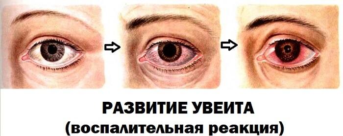 Увеит глаза человека