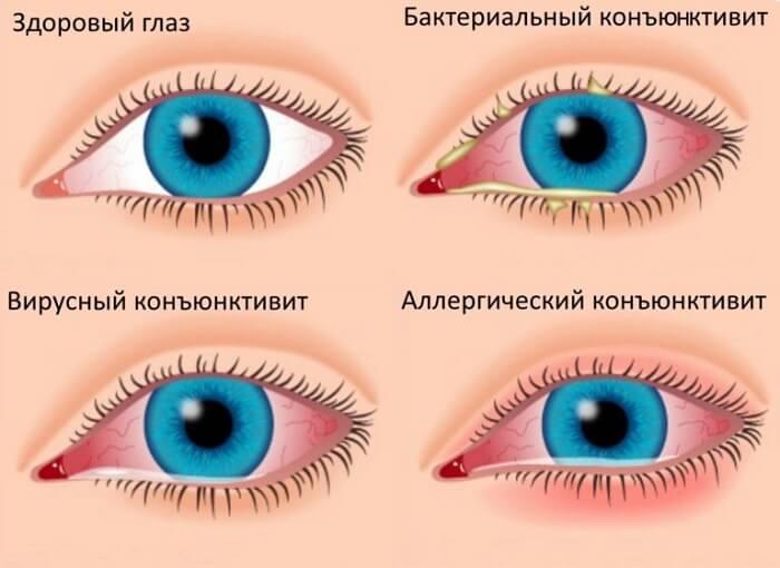 Виды конъюнктивита у человека